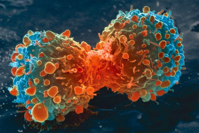 A lung cancer cell