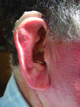 021 Hearing impaired man with hearing aid web