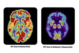 PET scans of a healthy brain and one suffering from Alzherimer's.