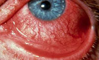 Chemical Eye injury