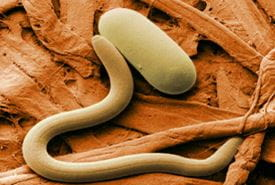 Colourised electron micrograph of soybean cyst nematode.